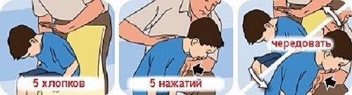 Если ребенок подавился, он может умереть. Запомни действия в опасной ситуации!